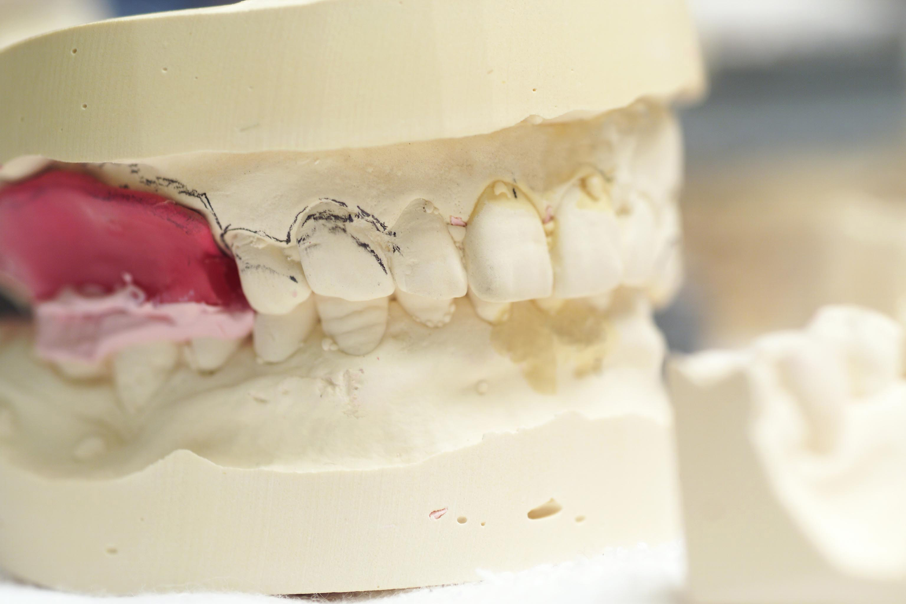 当院は高松でインプラントなどの口腔外科の治療を行っております