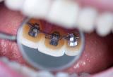 高松で矯正歯科を行う【サンシャイン歯科】では、歯の裏側から矯正する床矯正にも対応