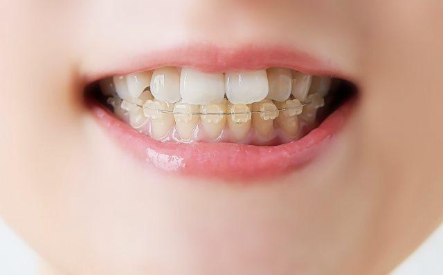 小児の矯正中は虫歯予防の徹底を