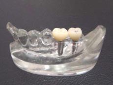 高松でインプラント(義歯)の事なら、抜かない・痛くないように治療を行う【サンシャイン歯科】