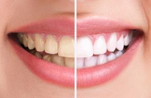 高松の審美歯科【サンシャイン歯科】なら、安い費用でホワイトニングが受けられてお得!