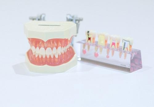 インプラントを成功させるために~歯周病を治療する・定期的に噛み合わせをチェック~
