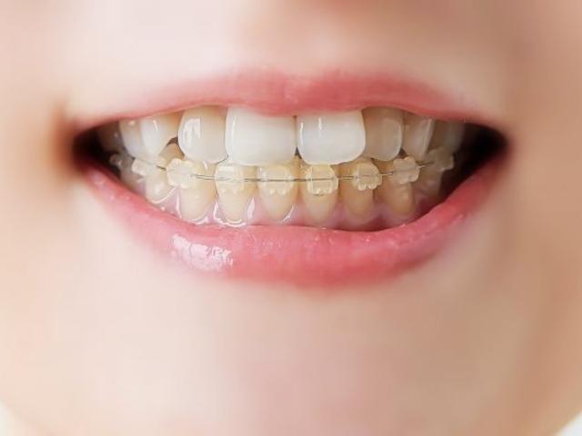 香川でホワイトニング・小児歯科・矯正歯科を承る【サンシャイン歯科】