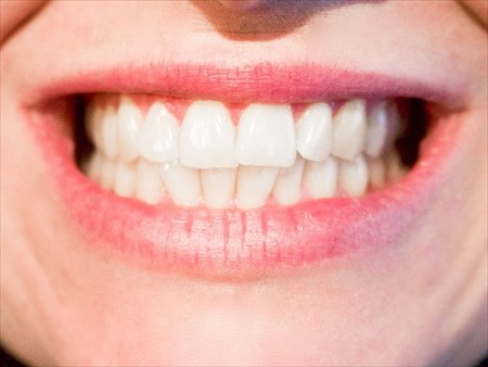 【サンシャイン歯科】はホワイトニングを専門に行う「ホワイトエッセンス」に加盟しています