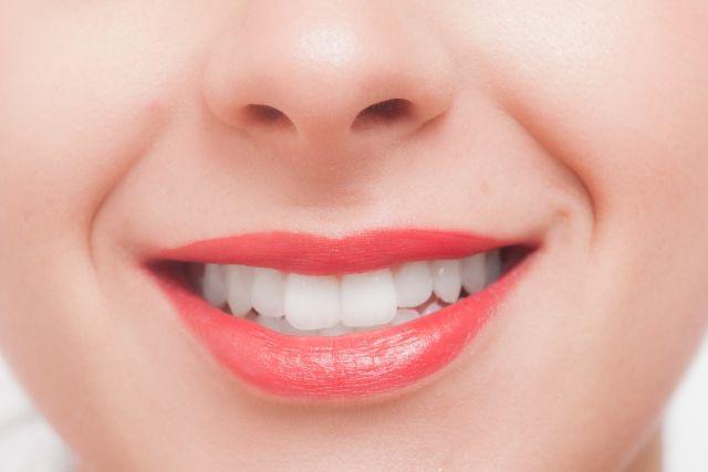ホワイトニングで白くなった歯